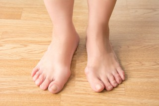 Bunions – Why and What to Do