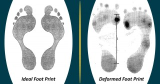 foot_deformities